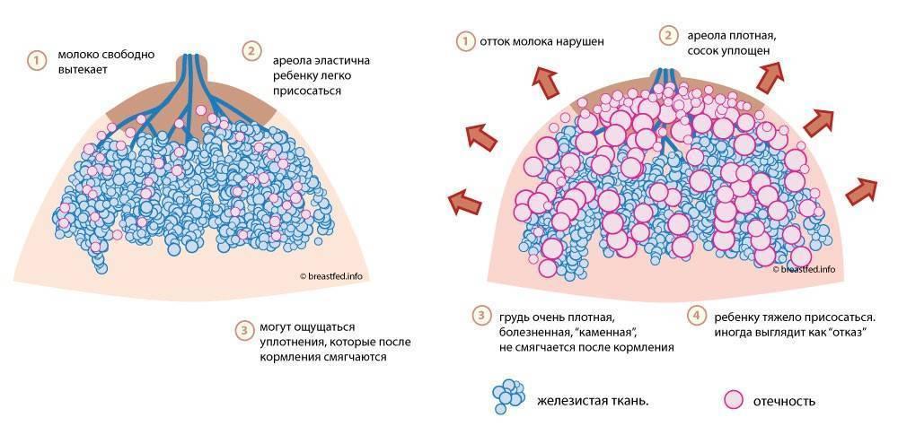 Причины образования уплотнений в молочной железе при грудном вскармливании: вероятные заболевания и способы их лечения