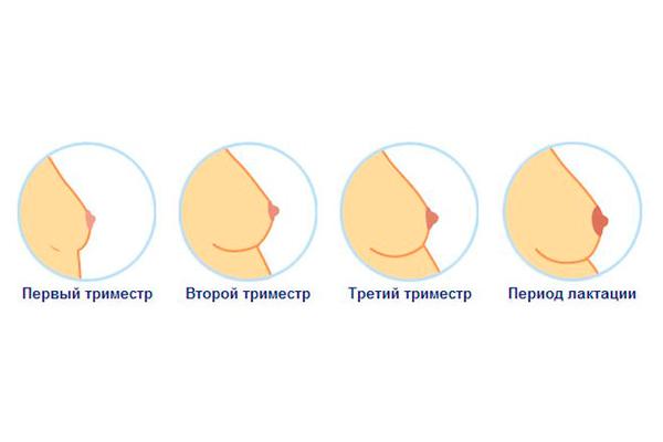Когда начинает болеть грудь при беременности и сколько длится симптом