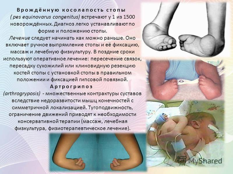 Врожденные пороки развития плода