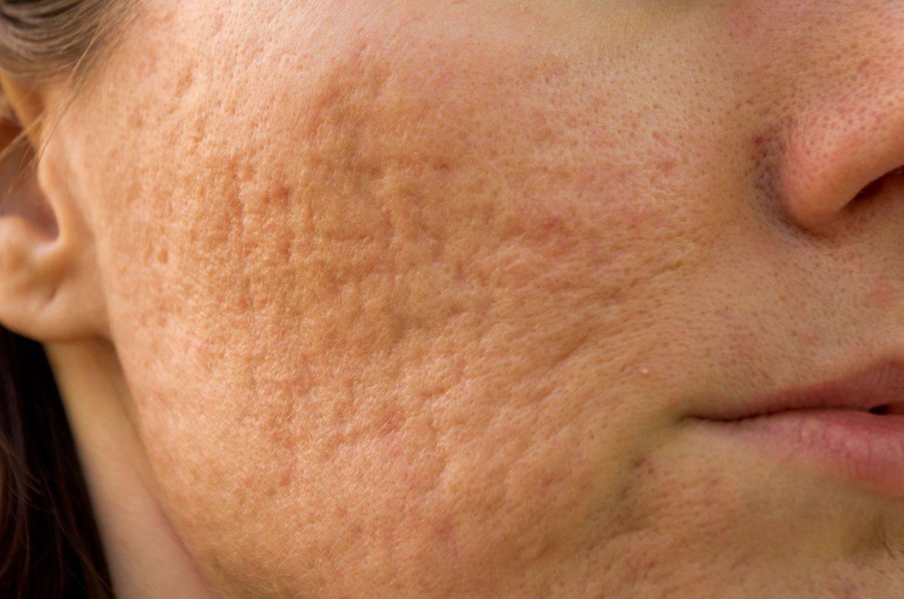 Как убрать шрамы от ветрянки на лице и теле и в каких случаях избавиться от рубцов не получится