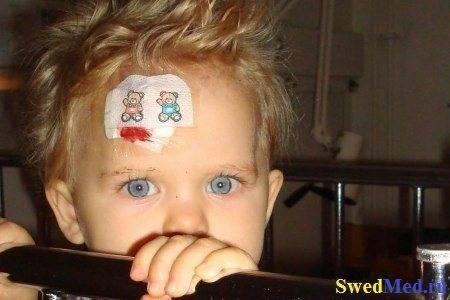 У ребенка шишка на лбу от удара: что делать в первую очередь || ребенок упал синяк на лбу что делать