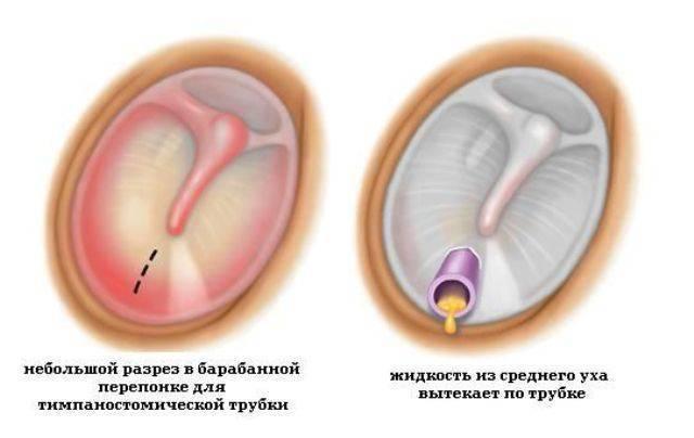 Как проводят процедуру шунтирования ушей у детей и какие могут быть последствия? - малышок