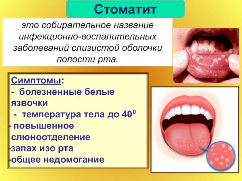 Герпетический стоматит у детей: лечение, виды и симптомы, методы лечения и профилактика заболевания, фото