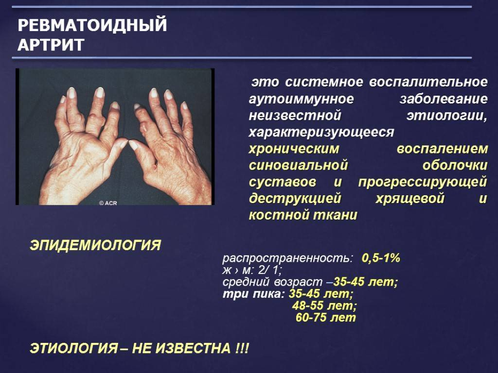 Ревматоидный артрит у детей: причины, симптомы, диагностика и лечение
