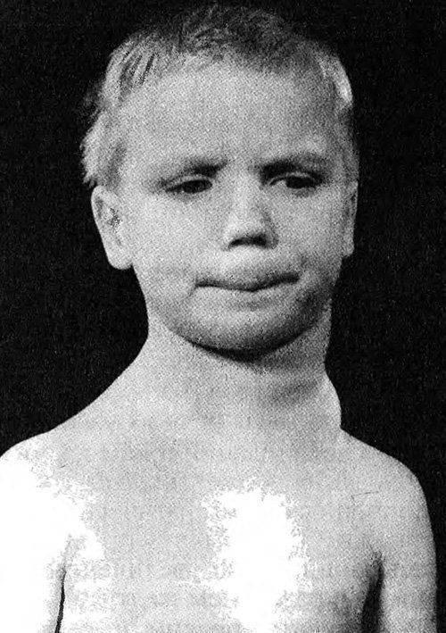 Лимфома у детей - симптомы, лечения, диагностика   у доктора.ру