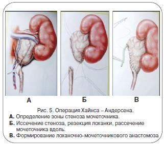 Гидронефроз при беременности: причины, симптомы, лечение, риски