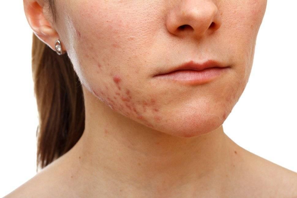 Прыщи на лице у женщин в зрелом возрасте: причины, лечение