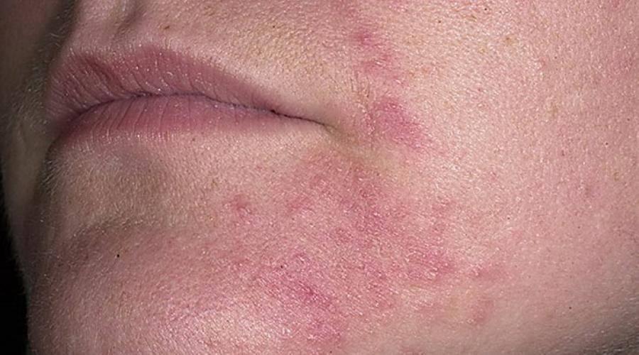 Сыпь на лице у ребенка — что это такое, виды высыпаний