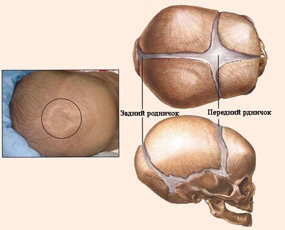 Большой родничок у новорожденного: нормы размеров, причины отклонений