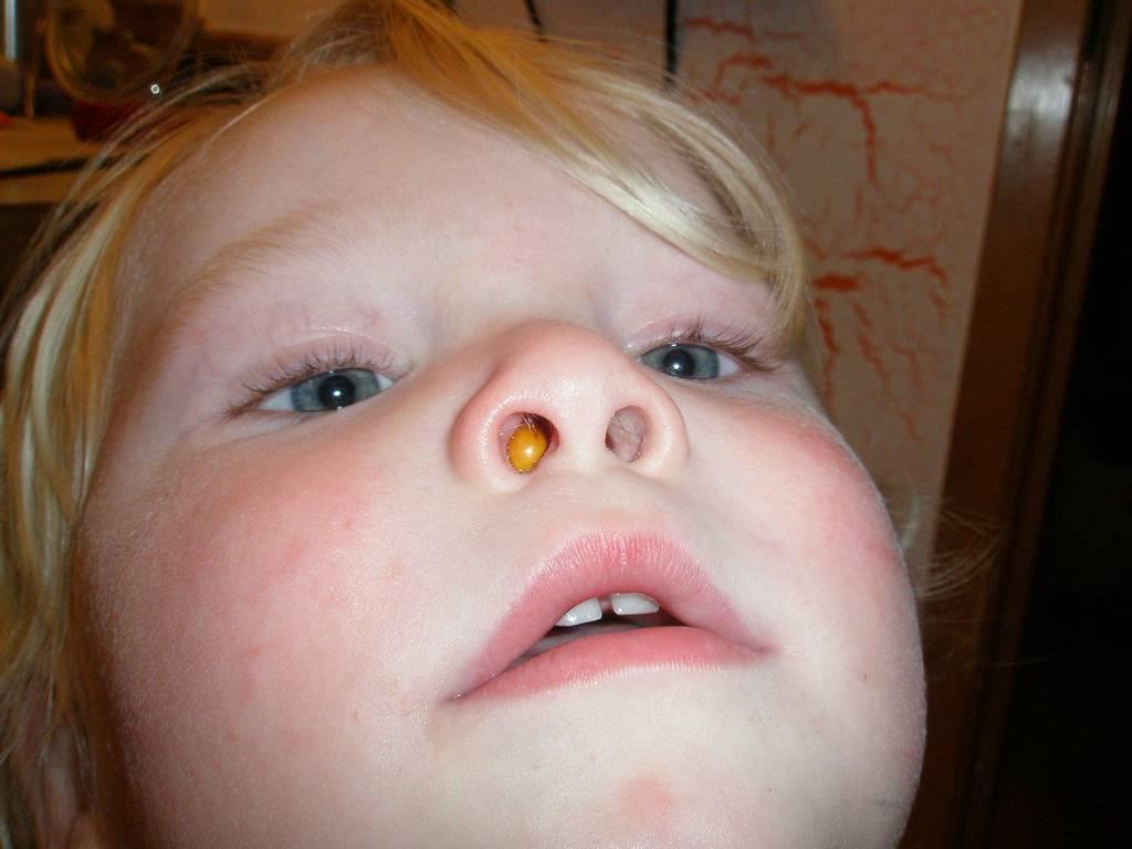 Лимфогемангиома у детей