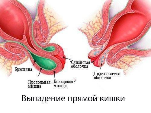 ⚠️ выпадение прямой кишки у детей [причины и способы лечения]
