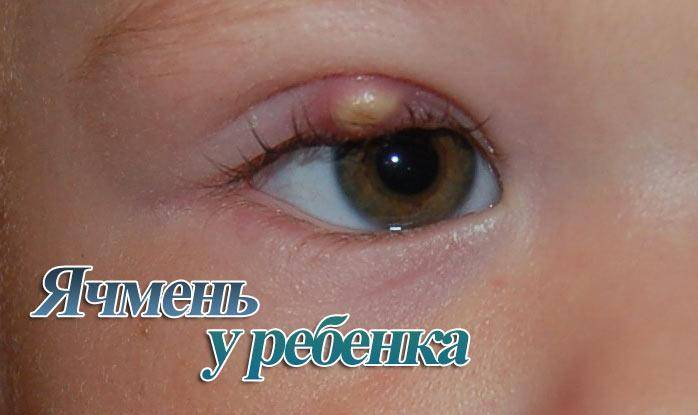 Лечение ячменя на глазу в домашних условиях быстро и эффективно – womanistka.ru