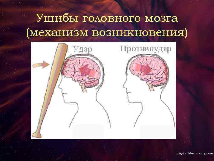 Опасность черепно-мозговых повреждений у ребенка