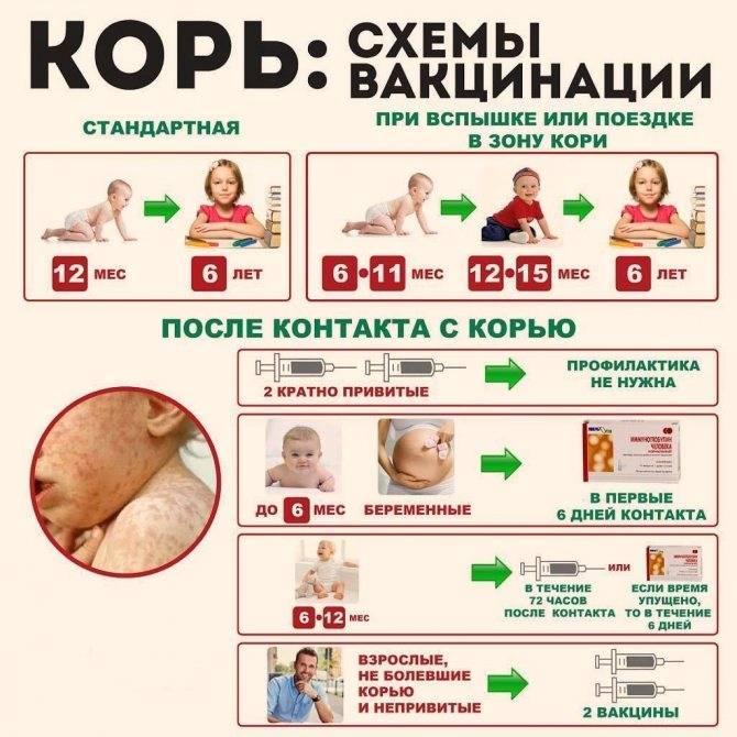 Прививка от кори взрослым – как называется, сколько действует, когда делают прививку