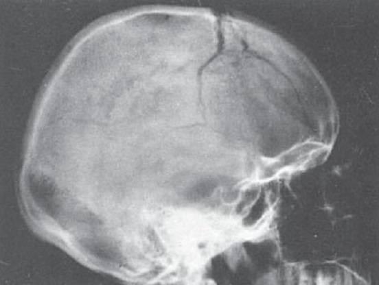 Перелом теменной кости у грудного ребенка: лечение, первая помощь, последствия, симптомы и признаки