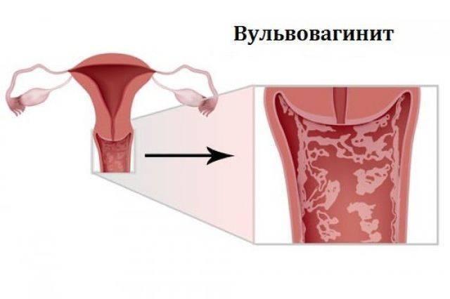 Вульвит у девочек и женщин - лечение, симптомы, причины