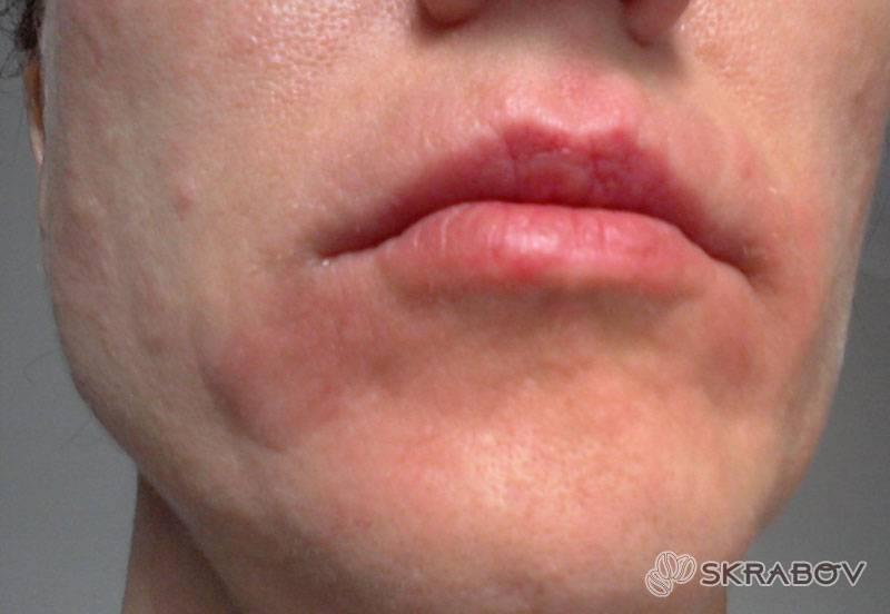 Пигментные пятна на лице при беременности причины возникновения, как избавиться в домашних условиях, профилактика