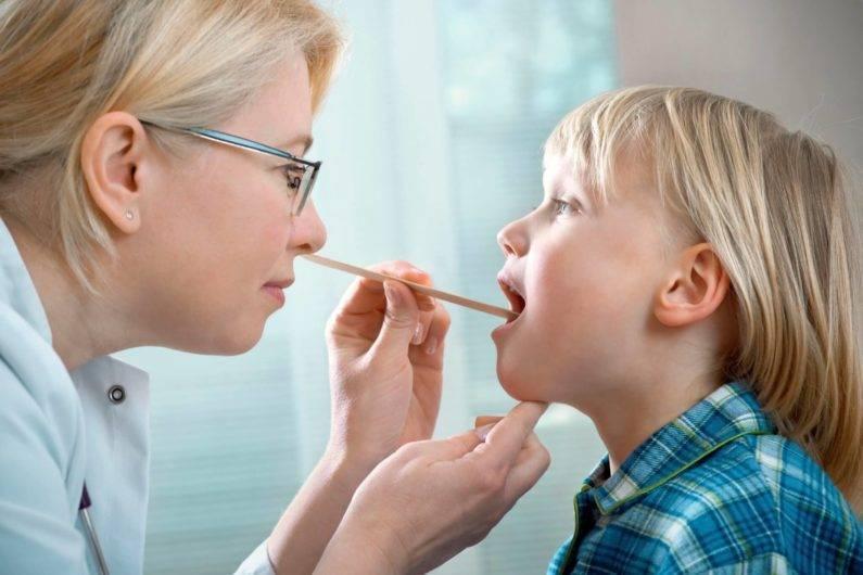 Стоматит у ребенка лечение (у детей) – виды, вирусный, кандидозный, герпетический, афтозный, симптомы
