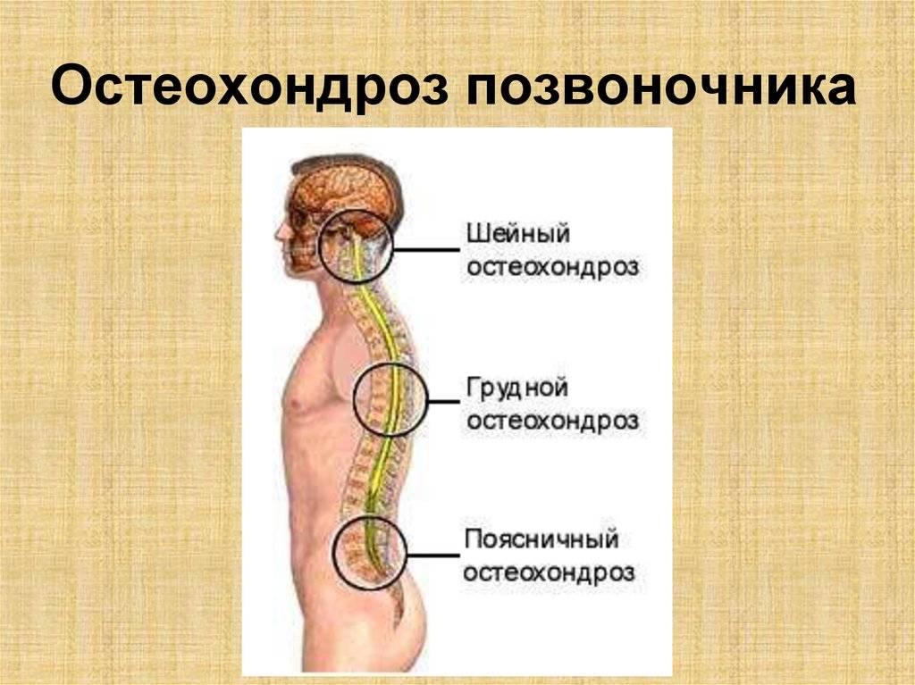 Шейный остеохондроз и психоневрологические расстройства