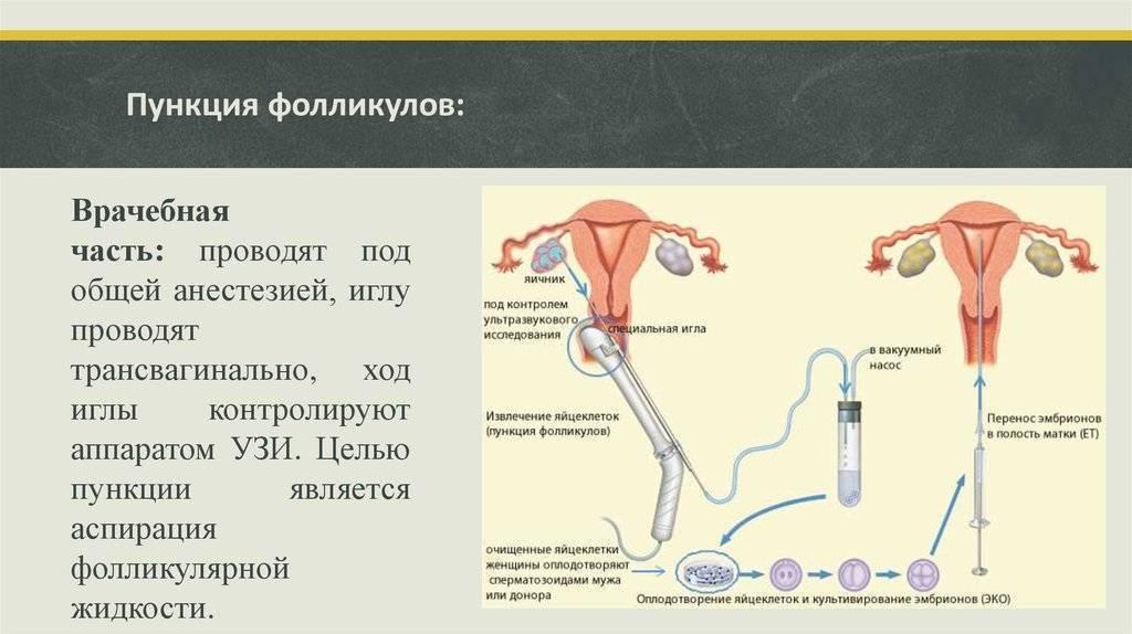 Лапароскопия перед эко: преимущества и показания