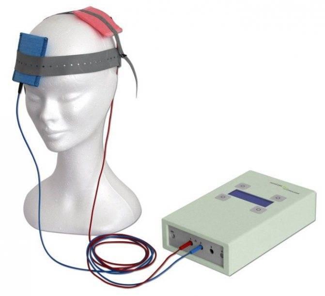 Трансвертебральная и транскраниальная микрополяризация головного мозга