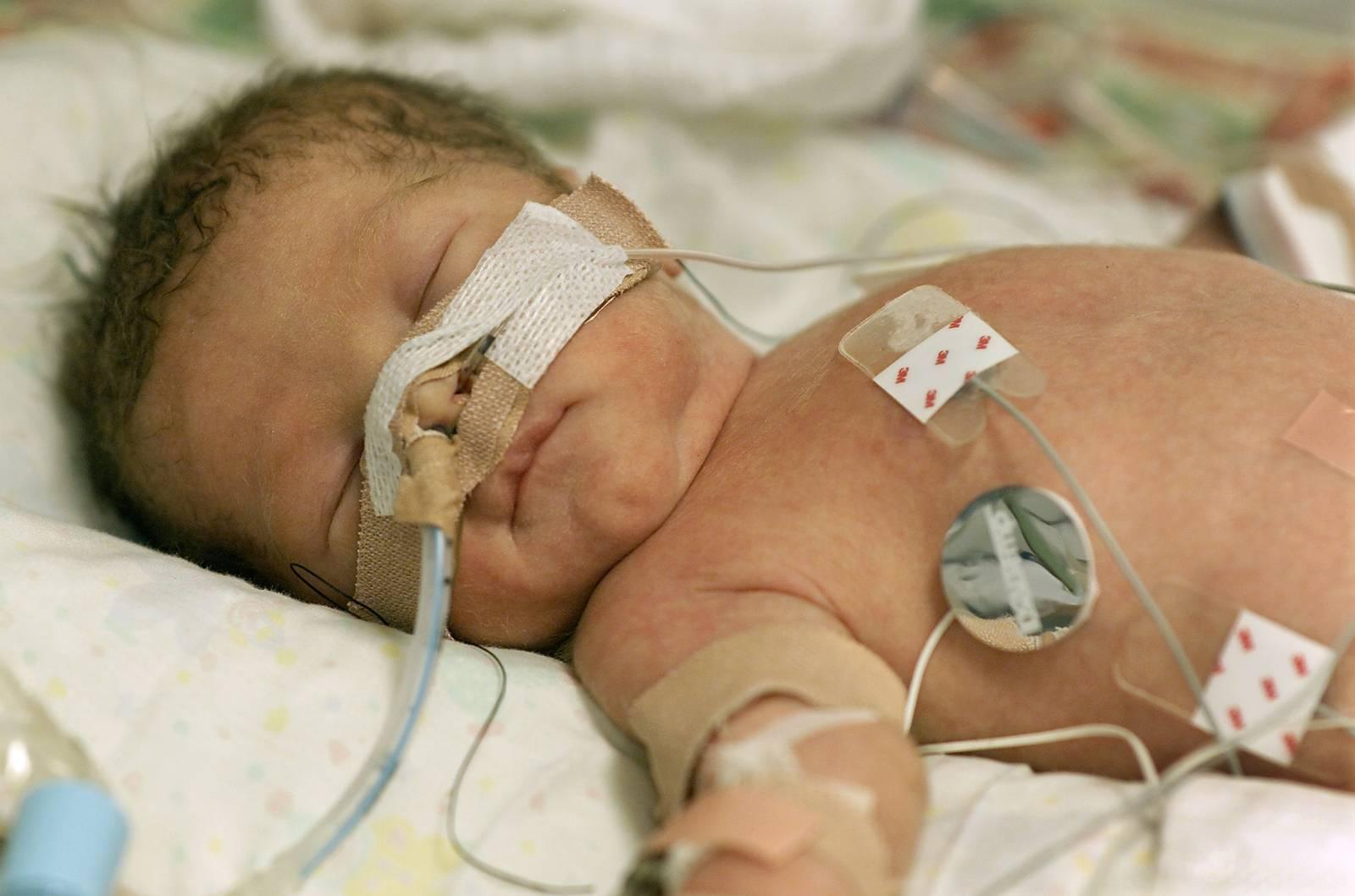 Гипоксия у новорожденных - что это, причины, симптомы, последствия и лечение