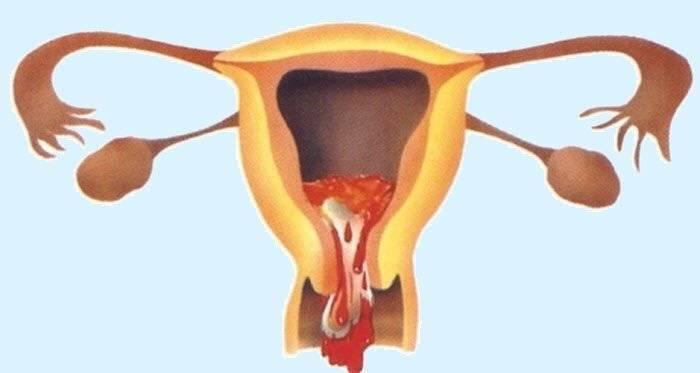 Симптомы неполного медикаментозного прерывания беременности