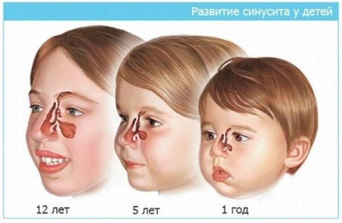 Синусит: симптомы, лечение, основные причины, механизм развития