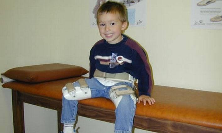 Болезнь пертеса: причины возникновения у детей, симптоматика, лечение
