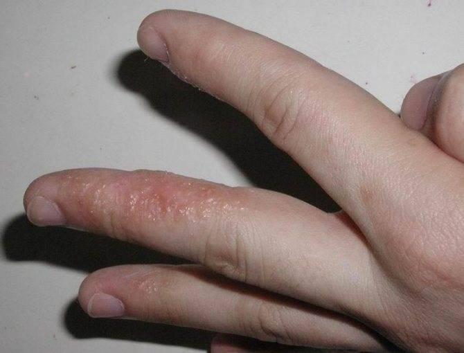 Волдыри на теле у ребенка (16 фото): появление на руках, ногах, пальцах и ладошках - с пояснениями
