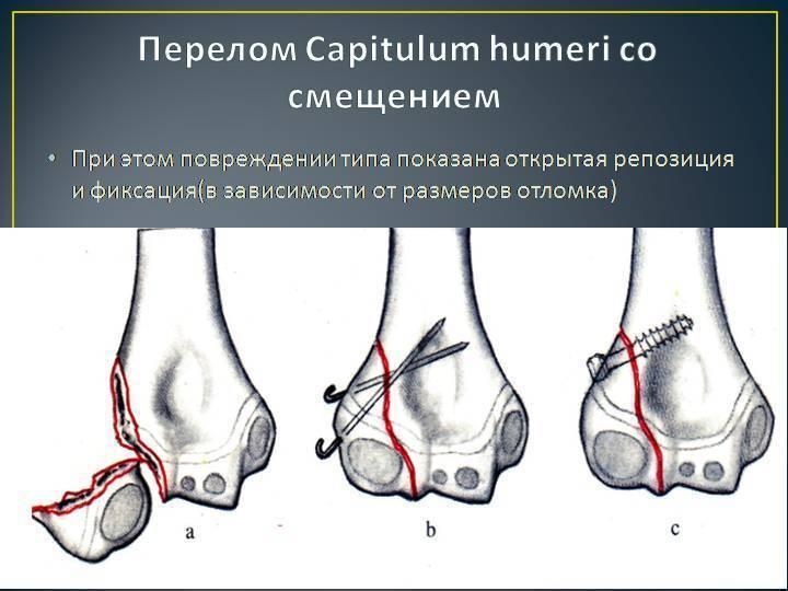 Переломы плечевой кости у детей - лечение, симптомы, классификация