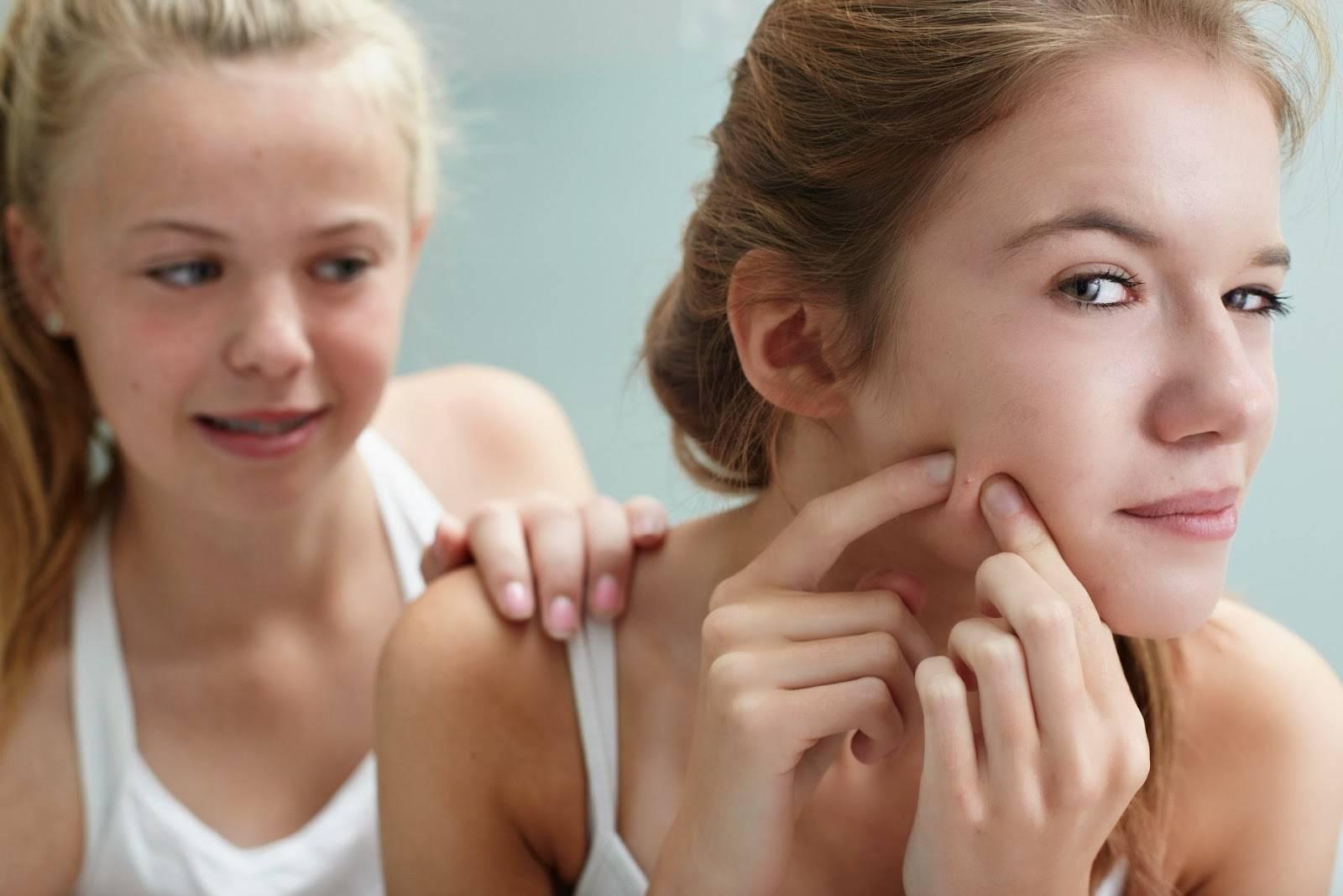 Почему появляются прыщи в подростковом возрасте и что с ними делать?