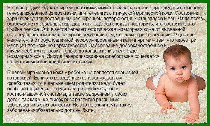 Мраморная кожа у грудничка и новорожденного (20 фото): цвет и мраморность кожи новорожденного, что это означает