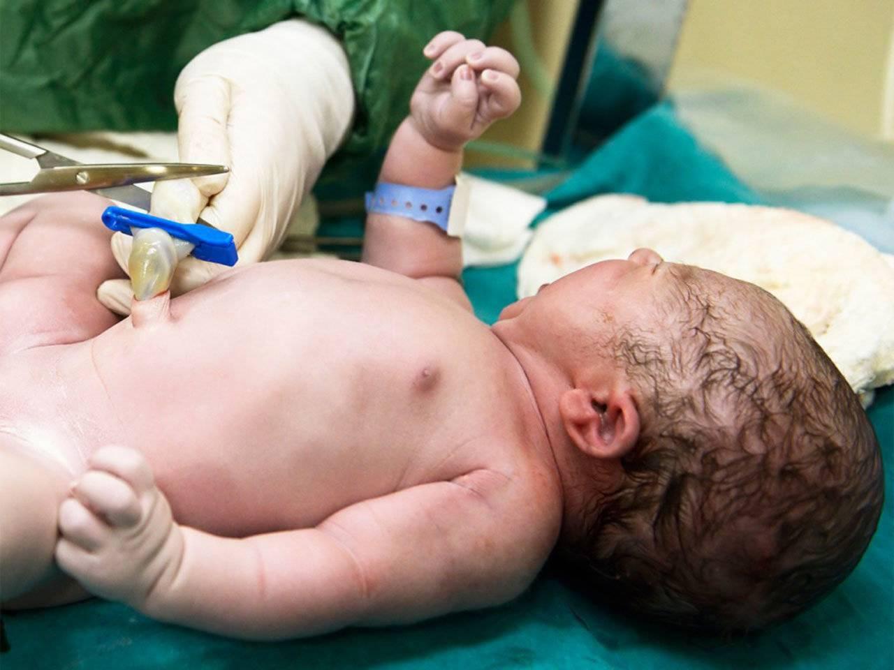 Пуповина (29 фото): как выглядит у новорожденного, как связана с матерью и куда девается после родов, ее длины, принципы и функции