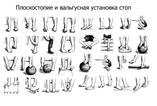 Вальгусная деформация коленного сустава у детей лечение