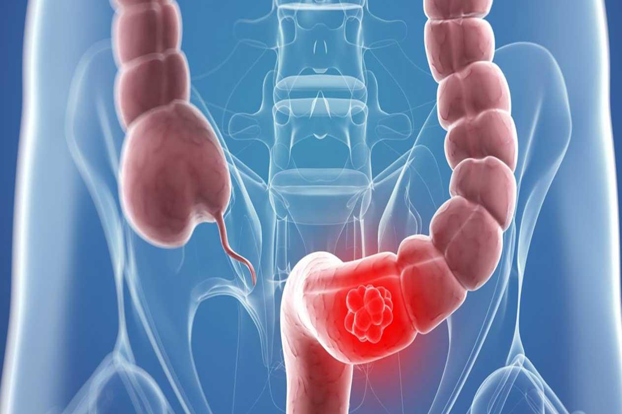 Долихосигма: что это такое, лечение долихосигмы у взрослых и детей, операция, правильное питание