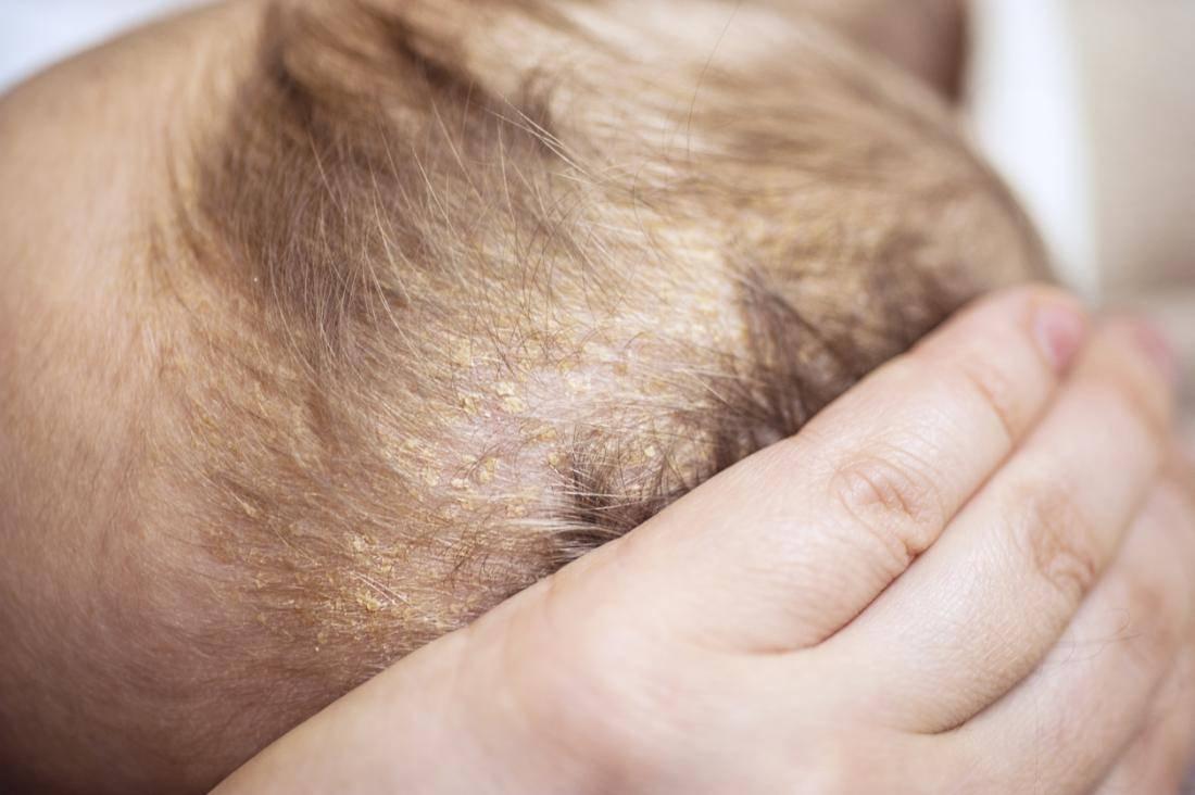 Себорейный дерматит у ребенка: основные признаки, лечение у детей себореи кожи головы