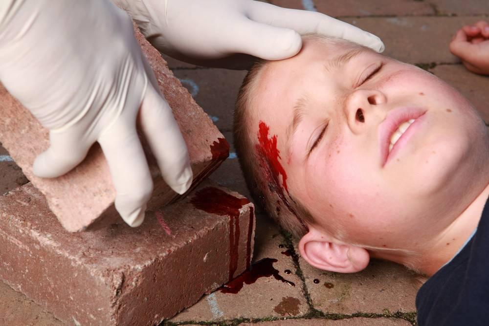 Ребенок ударился носом нос распух что делать