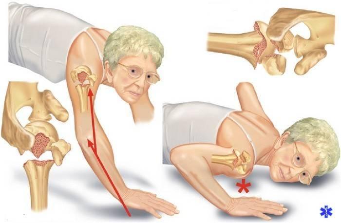 Переломы у детей: симптомы и лечение травм руки, ноги, черепа, ключицы, компрессионное повреждение позвоночника и другие