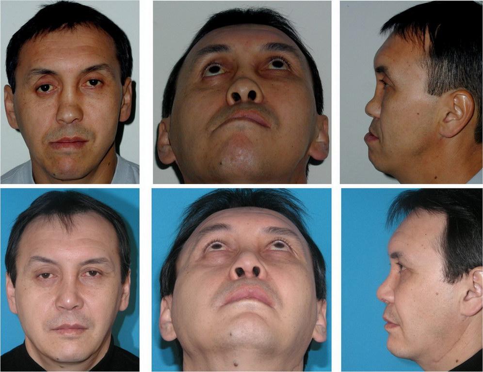 Признаки и симптомы перелома носа у ребенка: как определить наличие травмы после падения? - все о суставах