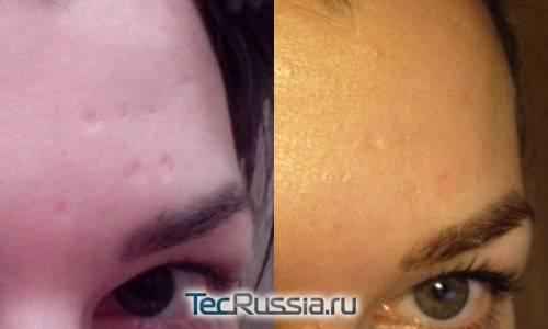 Как убрать шрам от ожога: остаются ли следы после, чем мазать застарелое темное пятно на лице, лечение, чтобы не осталось рубцов, мазь и крем, какой массаж нужен | moninomama.ru