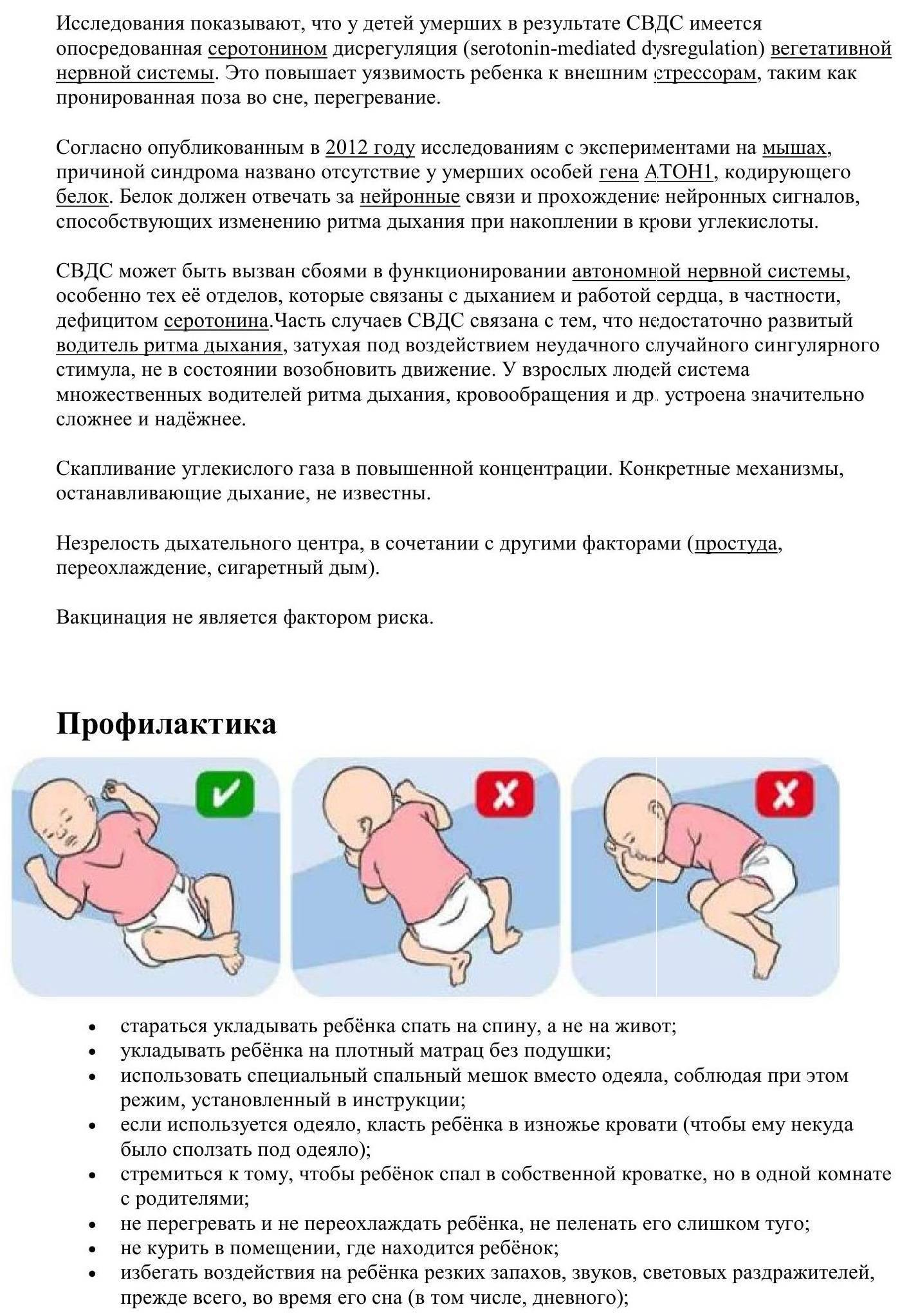 Все о синдроме внезапной детской смерти