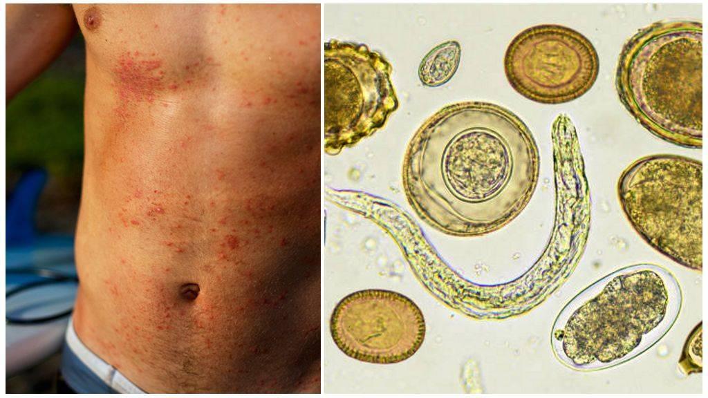 Токсокары у детей - симптомы и лечение: диагностика и анализы на токсокароз