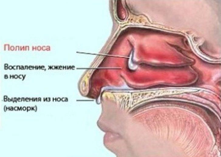Полипы в носу у ребенка: фото, симптомы, лечение и удаление полипов в носу
