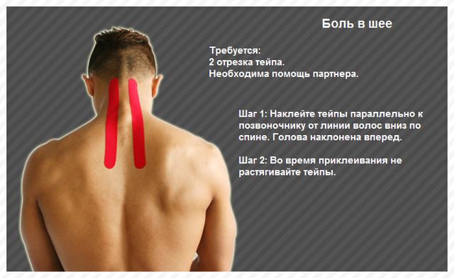 Болит шея при повороте головы: что делать, когда больно поворачивать шею вправо и влево, причины и лечение