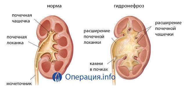 Гидронефроз почек у новорожденных и детей от года: симптомы, лечение и исход заболевания | заболевания | vpolozhenii.com
