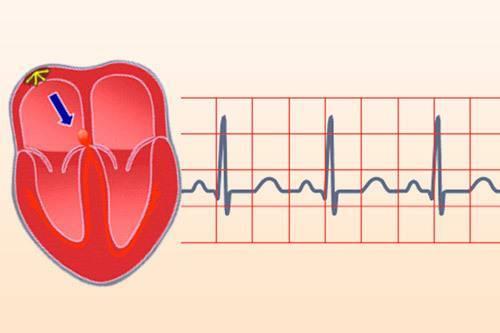 Тахикардия у ребенка: причины учащения ритма сердца, симптомы и лечение у новорожденных детей, школьников и подростков