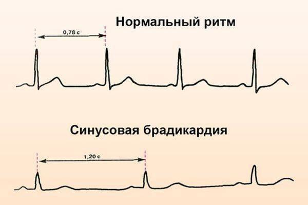 Брадикардия – что это? симптомы, причины и лечение брадикардии — заболевания сердца