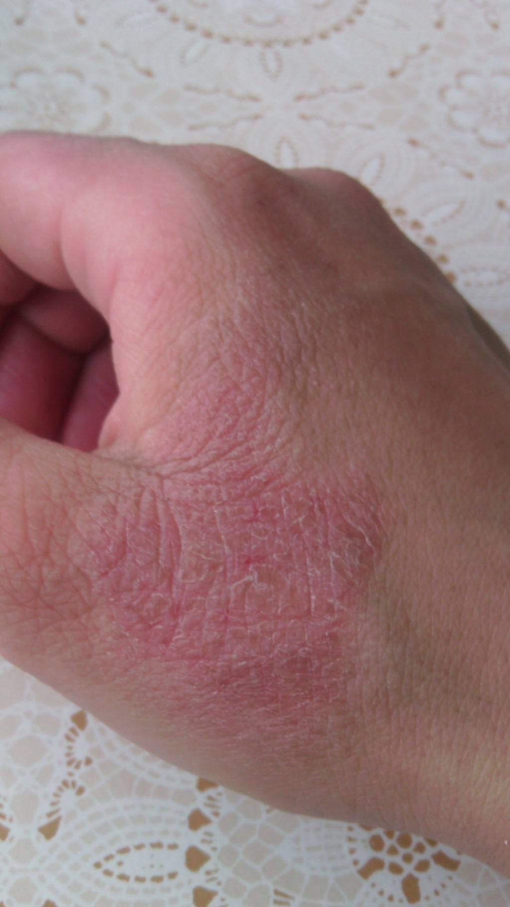 У ребенка перхоть и шелушение кожи головы: причины и лечение шампунями