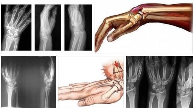 Переломы у детей. первая помощь и лечение переломов